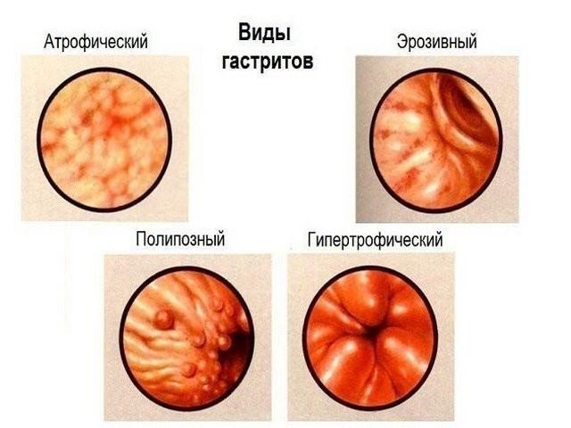 Хронический атрофический гастрит симптомы и лечение у взрослых