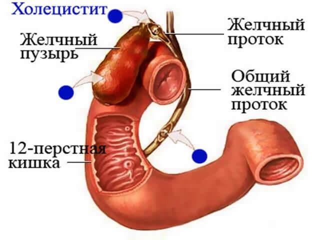 лечить печень от паразитов