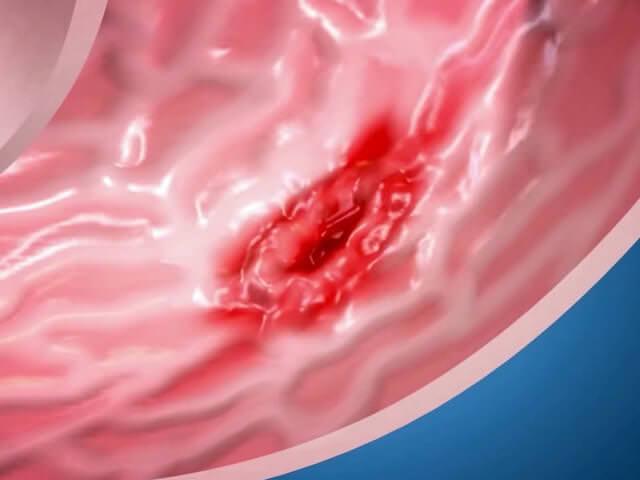 гиперацидный гастрит симптомы и лечение