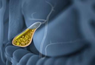 Заболевания желчного пузыря - симптомы и признаки заболеваний желчного пузыря, лечение, диета