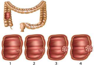 Народное лечение рака толстой кишки
