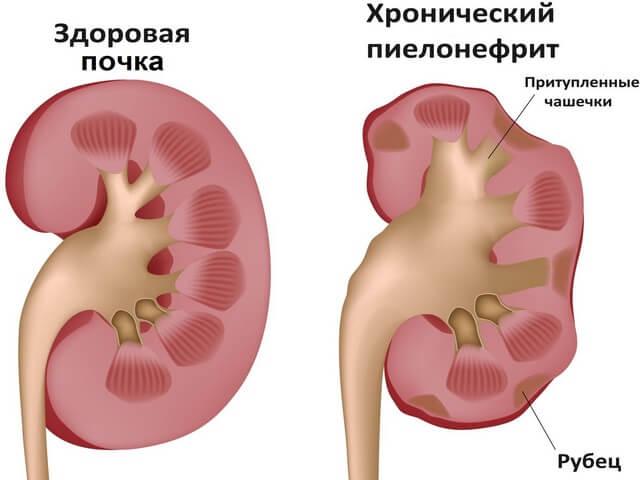 очистка кишечника от паразитов в домашних условиях