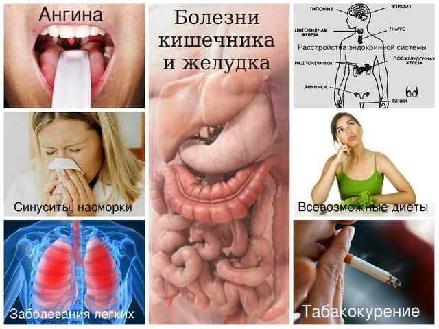 как вылечить запах изо рта