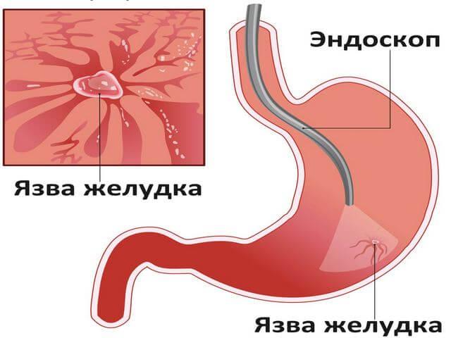 Почему болит желудок: Из за чего может часто болеть желудок