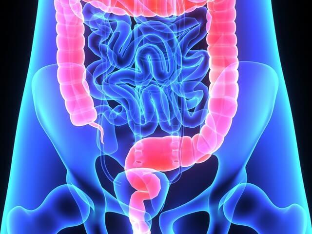 Долихосигма кишечника диета