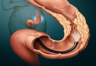 Как проверить кишечник кроме колоноскопии: 7 методов